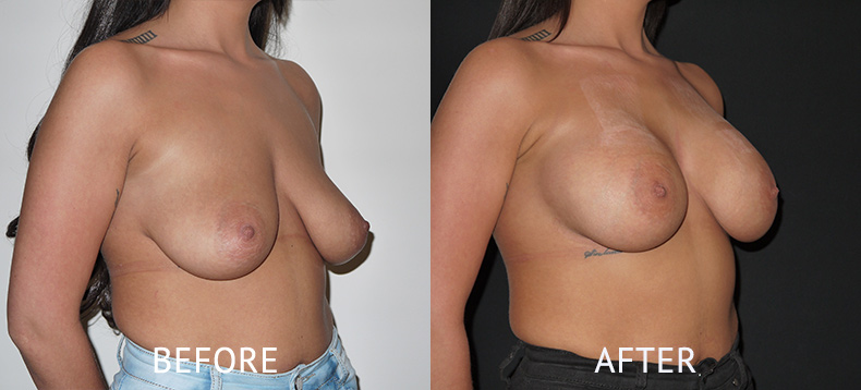 Before and after breast implants photos