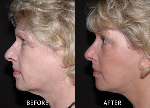 Face lift patient at before and after at cosmetic surgery London side view