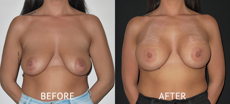 Before and after breast augmentation photos