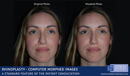 cosmetic surgery imaging software