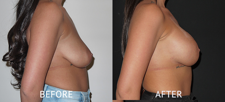 Before and after breast enlargement photos