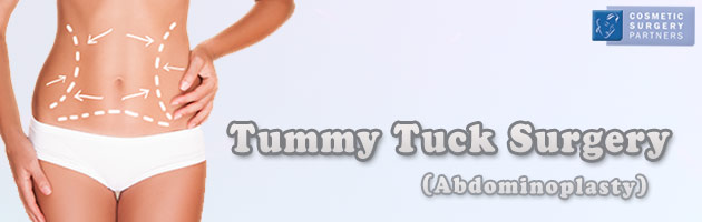 Tummy tuck surgery London
