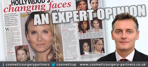 The morphing face of Renée Zellweger expert cosmetic surgeon analyses evidence