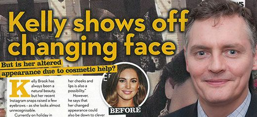 The changing face of Kelly Brook