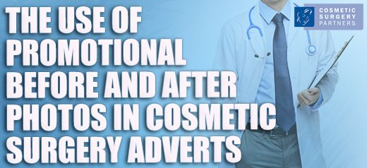 The proper use of before and after photos in cosmetic surgery advertising