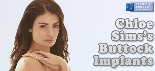UK Surgeon Mr Miles Berry on Chloe Sim's Buttock Implants