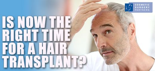 Is now the right time for a hair transplant