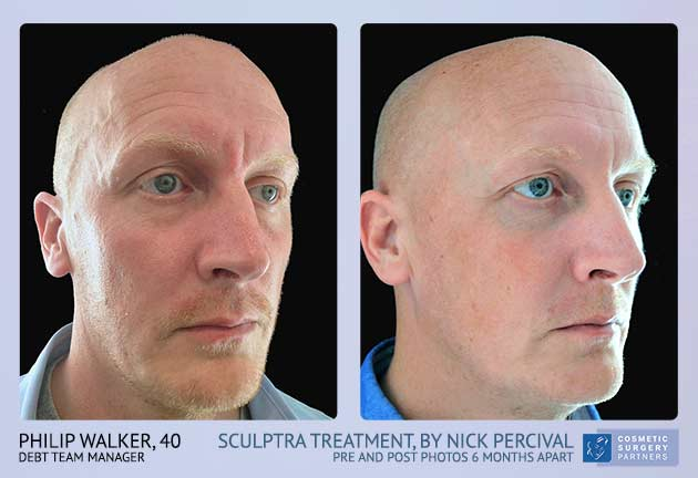 Male Sculptra treatment before and after photos