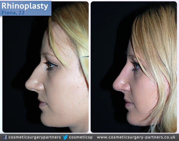 Rhinoplasty patient case studies