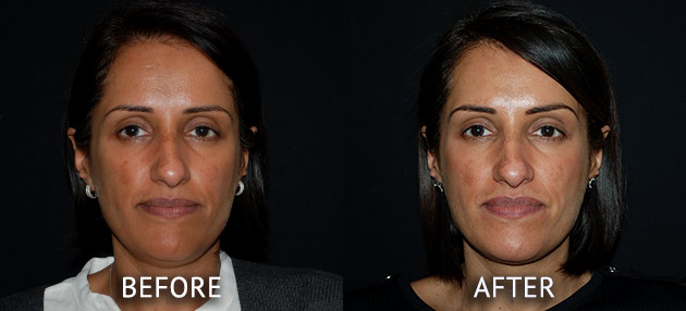Obagi patient at cosmetic surgery partners before and after front view