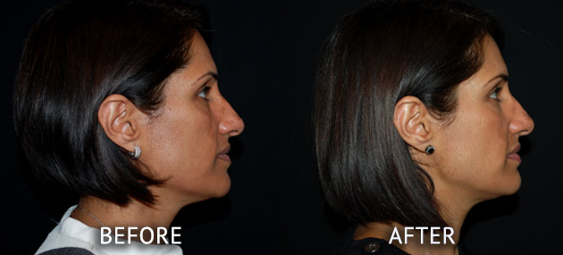 Obagi patient at cosmetic surgery partners before and after right side view