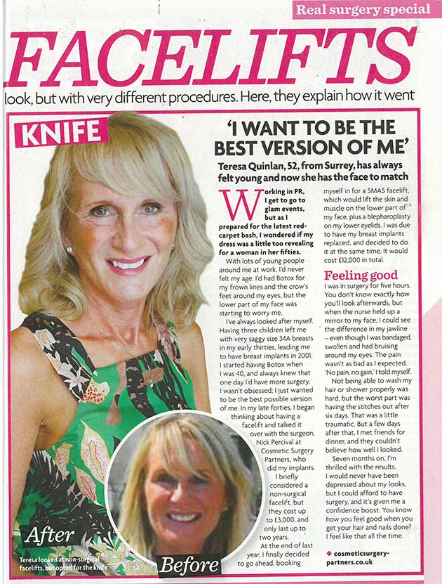 Face lift Womans Own magazine feature