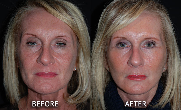 Face Lift patient at cosmetic surgery partners before and after front view