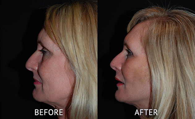 face lift by Mr Nick Percival