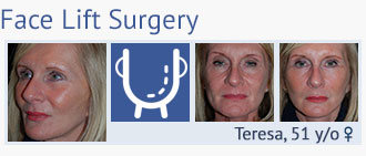 face lift surgery at cosmetic surgery partners