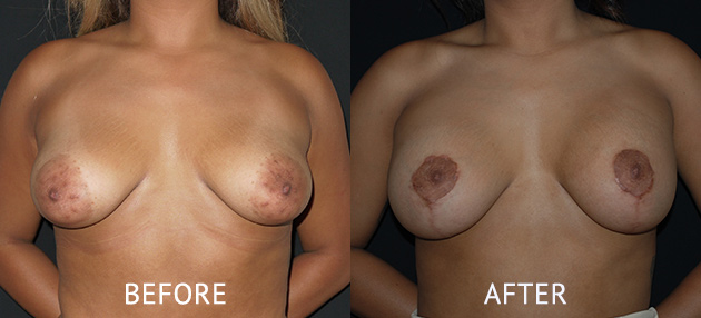 nipple reduction before after photo.jpg