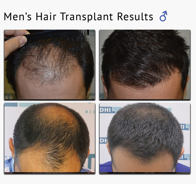 men hair transplant results london