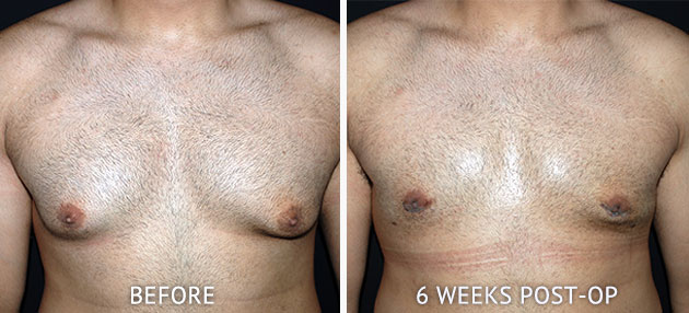 Gynaecomastia before and after photos