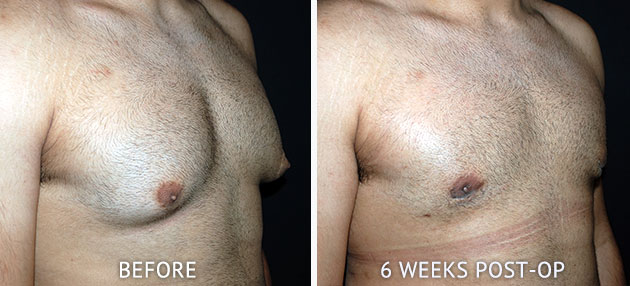Gynaecomastia patient before after surgery photos
