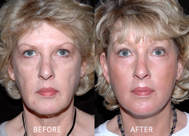 Face lift patient at before and after at cosmetic surgery London front view