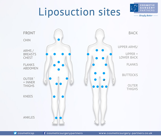 Vaser Liposuction Surgery And Treatment Csp London