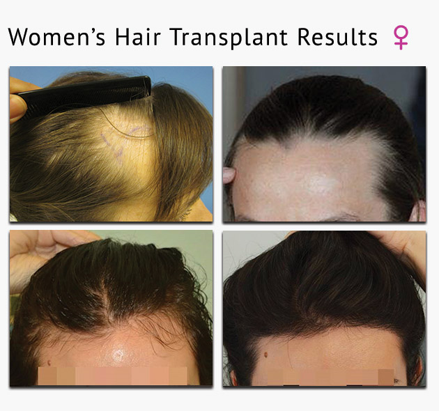 DHI women's hair transplant results london