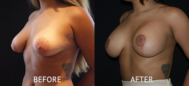 nipple reduction breast augmentation before after.jpg