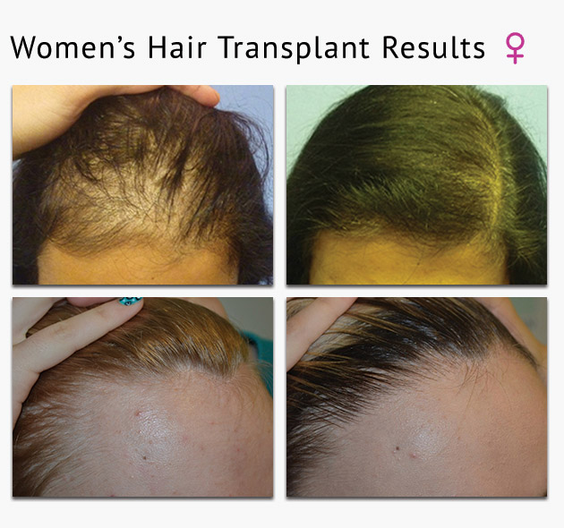 womens hair transplant photos