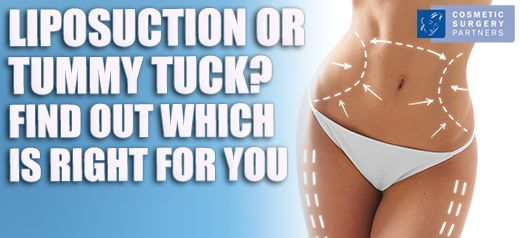 Tummy tuck vs liposuction surgery – which is right for me?