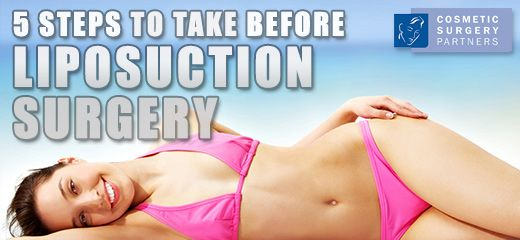 Five important steps to take before liposuction surgery