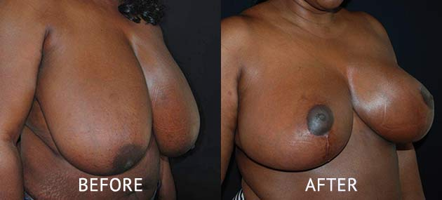 breast reduction surgery before and after photos