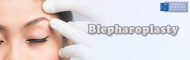 Blepharoplasty eyelid cosmetic surgery in London