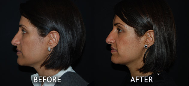 Obagi patient at cosmetic surgery partners before and after left side view
