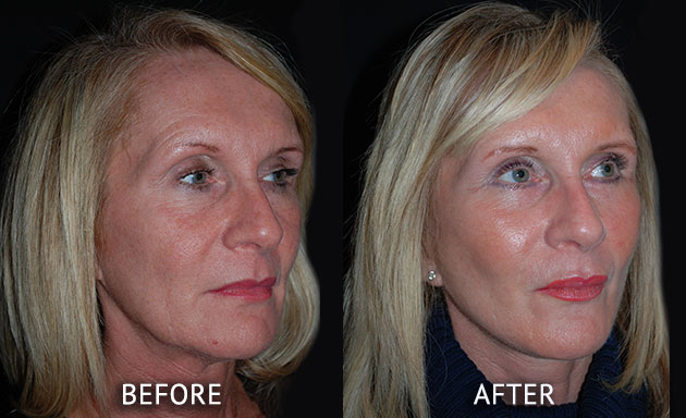 Face lift patient before and after photos