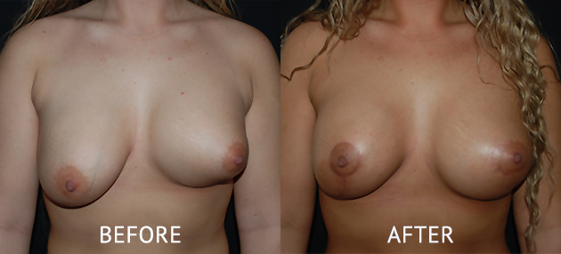uneven breast correction surgery before and after