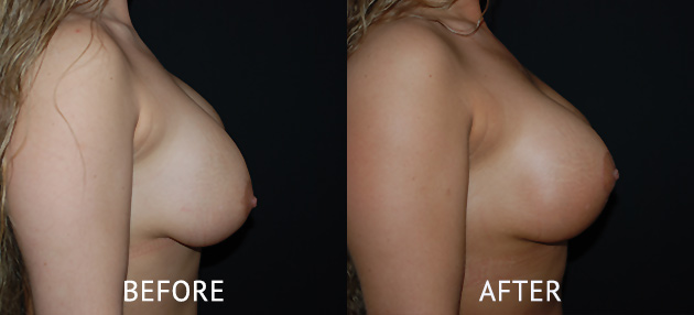 asymmetrical breast size correction surgery before and after photo London