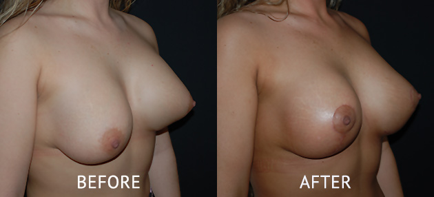 uneven breast correction surgery before and after cosmetic surgery photos